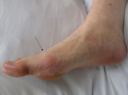 side view of a foot showing a red patch of skin over the joint at the base of the big toe